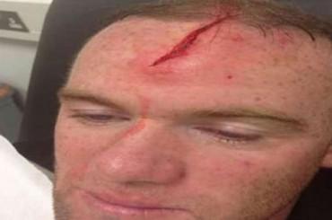 Wayne Rooney tiene una aparatosa cicatriz en la cabeza